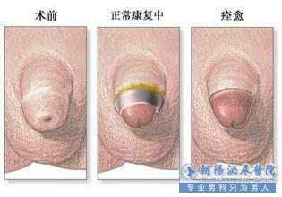 包皮手术前后对比图